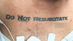 http://www.spiegel.de/gesundheit/diagnose/patientenverfuegung-nicht-wiederbeleben-tattoo-verunsichert-aerzte-a-1181794.html